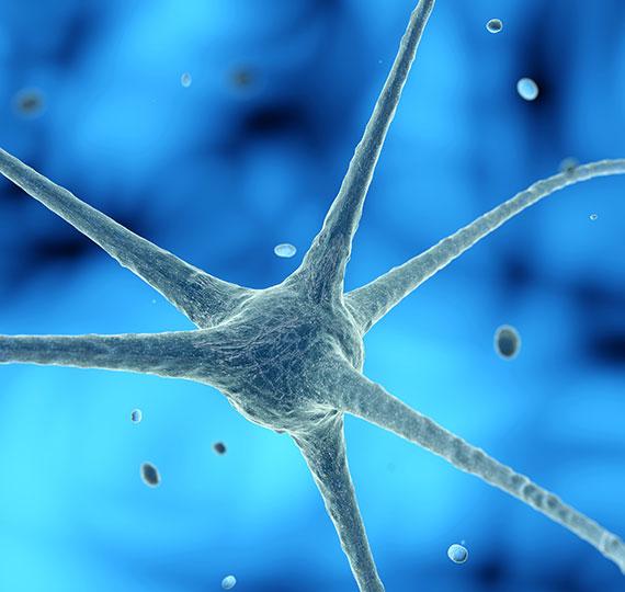 Visita Neurologica a Perugia